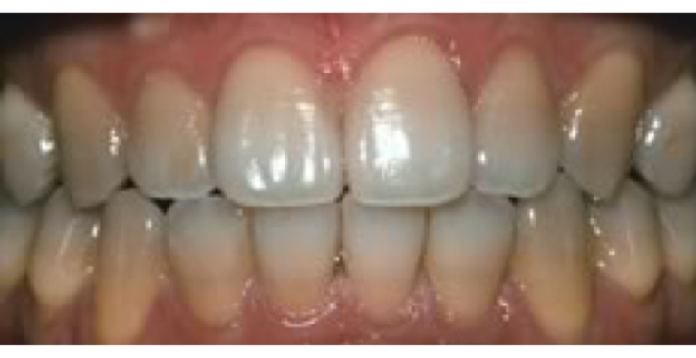 GLO Science Whitening-Severe Staining